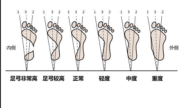 女鞋挑选技巧